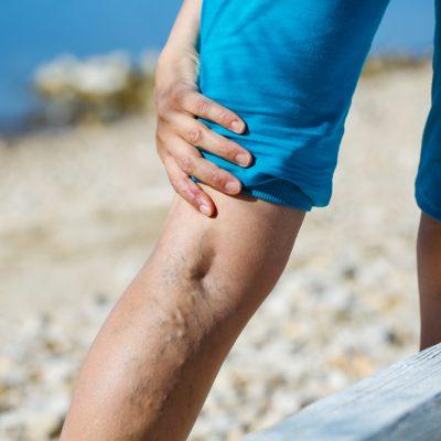 Woman touching painful varicose veins on a leg